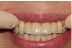 Dental Implants Treatment Service
