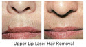 Laser Hair Removal Treatment For Upper Lip Area