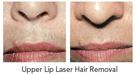 Laser Hair Removal Treatment For Upper Lip Area At Rs 2499 Chennai