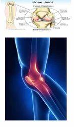 Knee Pain Treatment Services