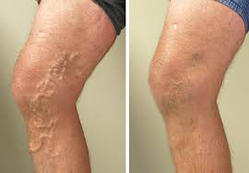 varicose vein treatment cost in india