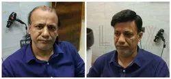 Hair Bonding In Gurgaon