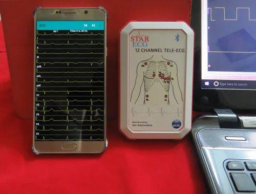 ECG Machine - Tele-ECG Machine Service Provider from Chennai