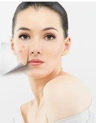 Chemical Peeling Aesthetic Procedures