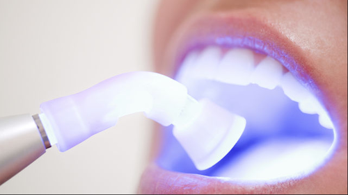 Laser Teeth Whitening Zapping Away to a Brighter Smile