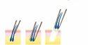Follicular Unit Extraction FUE Service