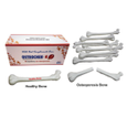 Osteoporosis Demonstration Kit Models