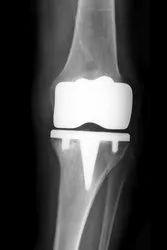 Best Knee Replacement Doctor