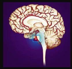 Brain Aneurysm Basics