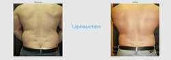 Liposuction Tummy Tuck