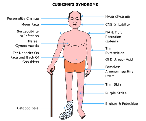 Cushings Syndrome | tenderness.co