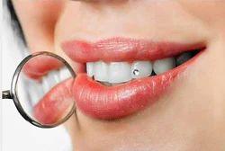 7db03997c Teeth Jewellery in Noida, टीथ ज्वेलरी, नोएडा, Uttar ...