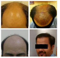 FUT Hair Transplant Service