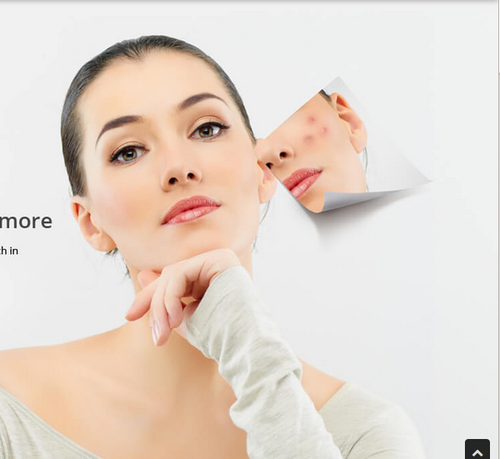 Acne Pimples Treatment Service Acne Treatment Services Vcare Trichology Clinic Bengaluru Id 16975513330