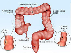 Gastrointestinal And Cancers Treatment Service