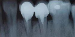 Dental Digital X-Ray Service