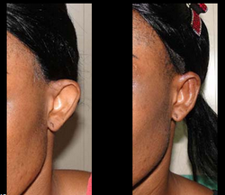Otoplasty Treatment Services