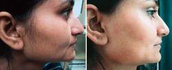Face Hair Reduction Treatment in chennai