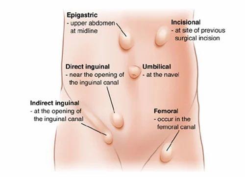 Laparoscopic Hernia Surgery, Laparoscopic Surgery Service - Metro