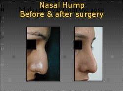 Nose Cosmetic Surgery