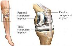 Knee Replacement Surgery Treatment Services