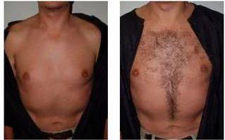 Body Hair Transplant, Hair Transplantation - Kalosa Hair And ...