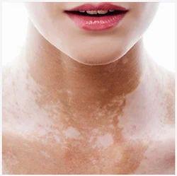 Treatment Of Vitiligo Leucoderma Treatment Services