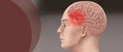 Migraine Headache Treatment Service