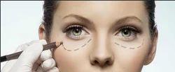 Oculoplasty Eye Services