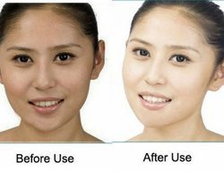 Skin Brightening Treatment for Darker Skin