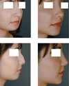 Liposuction - Vaser : Prominent Jaw Treatment Service