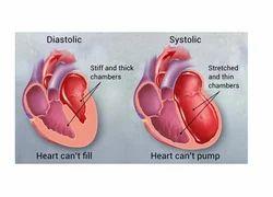 Heart Failure Treatment Service
