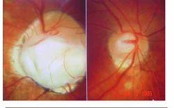 Neuro ophthalmology Network