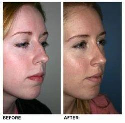 Nose Prosthodontics Treatment Service