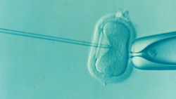 Women Infertility Treatment Services