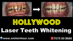 Laser Teeth Whitening In 10 Min Affordable Cost By Smile In Hour Dentist Dental Clinic