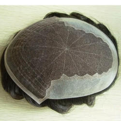 French Lace Patch