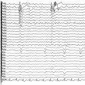 Arrow Eeg Paper For Cardiology