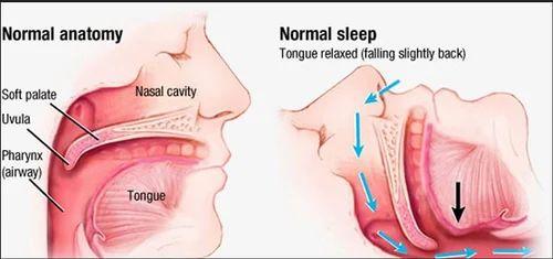 snoring and sleep apnoea surgery