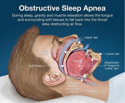 OSA - Obstructive Sleep Apnea