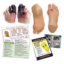 Complete Diabetic Foot Care Education