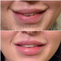 Filler Treatment For Lip Corrections