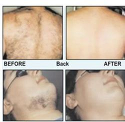 Laser Hair Removal Services In Pune ल जर ह यर