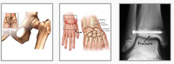 Fracture Treatment Service