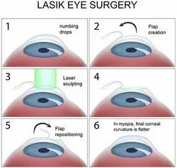 Laser Eye Surgery, For At Hospital