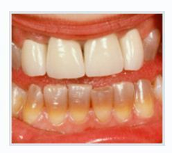 Discoloration of a Tooth