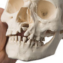 Microcephalic Skull With Cleft Jaw and Plate