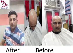 Male/female Hair Wig Fix and Weaving Services