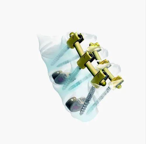 Orthopaedic Implants Titanium Spinal Implant