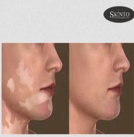 Vitiligo Treatment Services In Shiv Chowk Model Town Rewari Id 17836863788